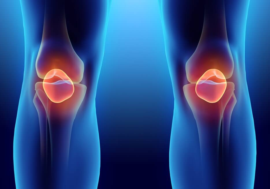 3D illustration of Patella