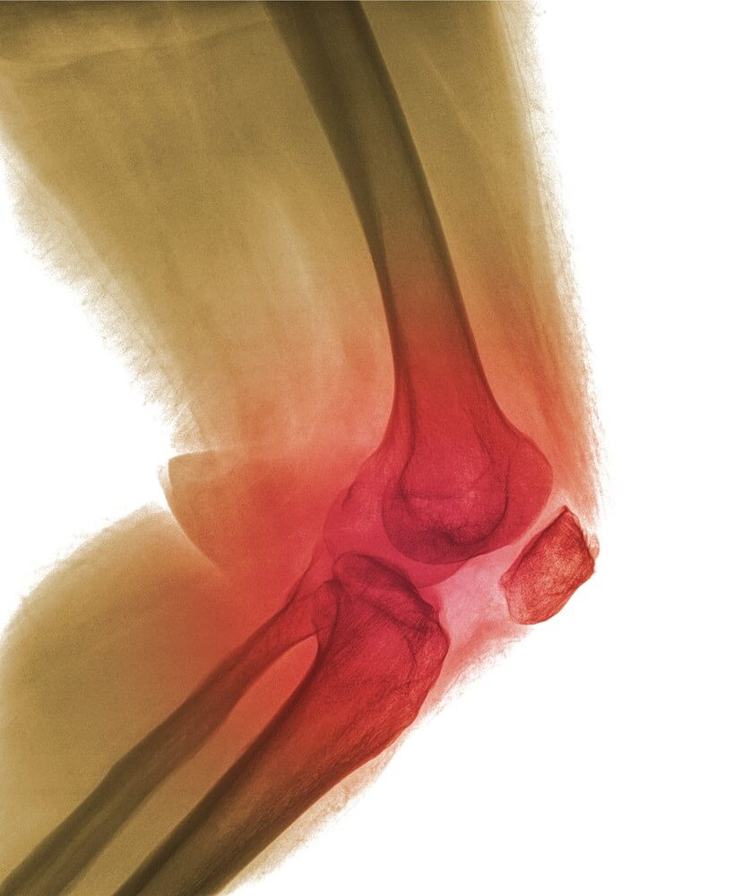Close-up xray of a human knee