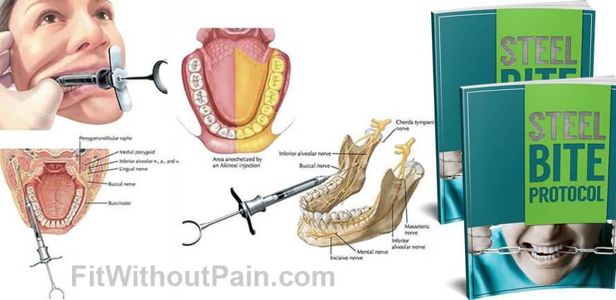 Steel Bite Protocol Dental Work
