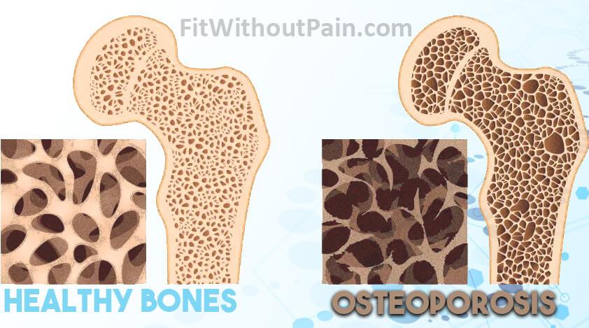 The Bone Density Solution Healthy Bones