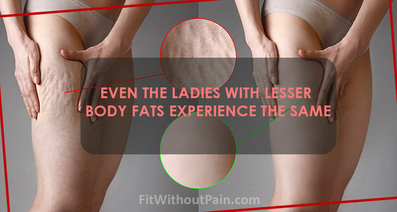 The Truth About Cellulite what Causes the Cellulite