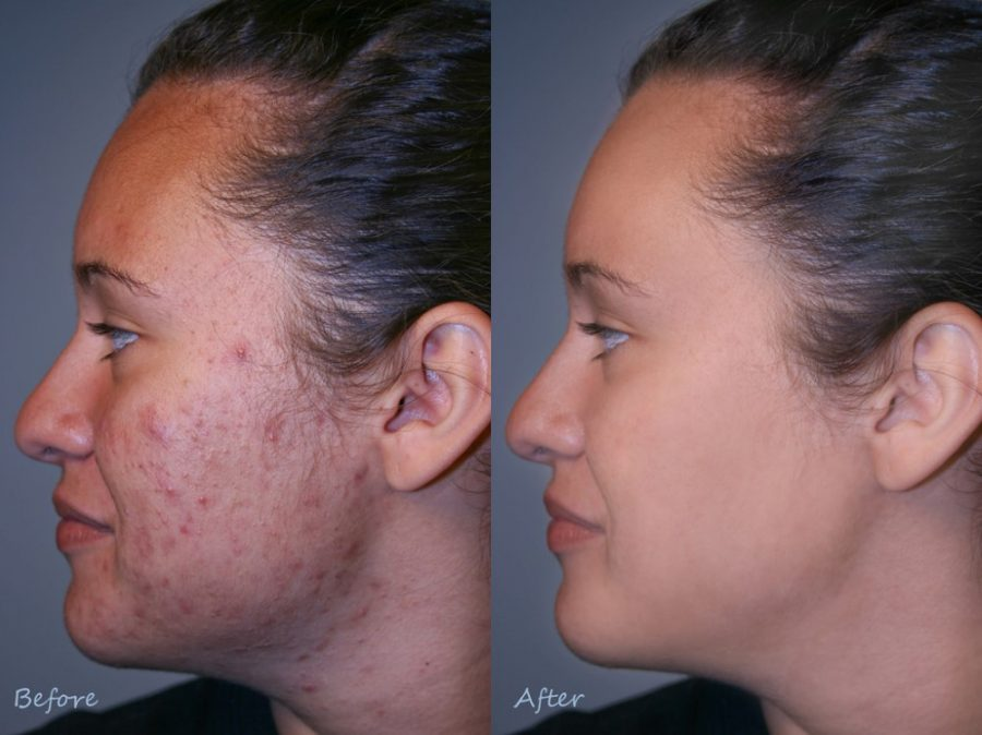 Acne Scar-Before and After