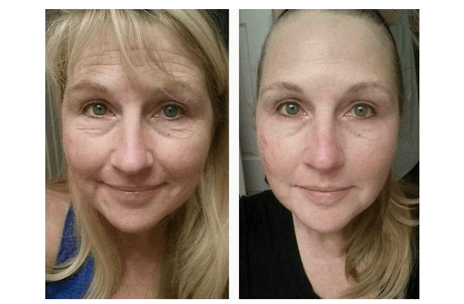 Facelift Without Surgery Review 1