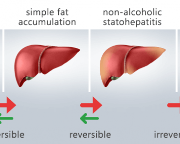 The Fatty Liver Solution Review: The Real Cure To A Fatty Liver?