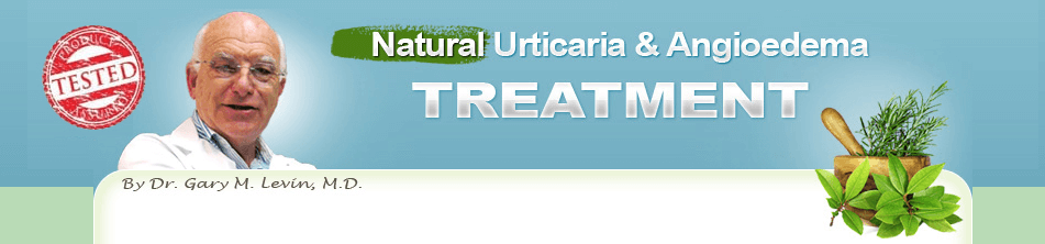 Natural Urticaria & Angioedema Treatment System Review