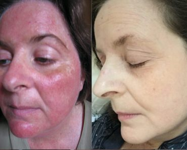 Rosacea Free Forever Review: No More Red Rashes On Your Face?