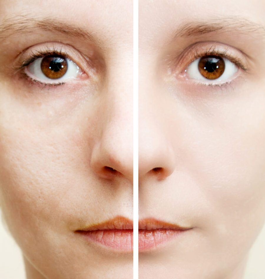 Woman with spotty skin
