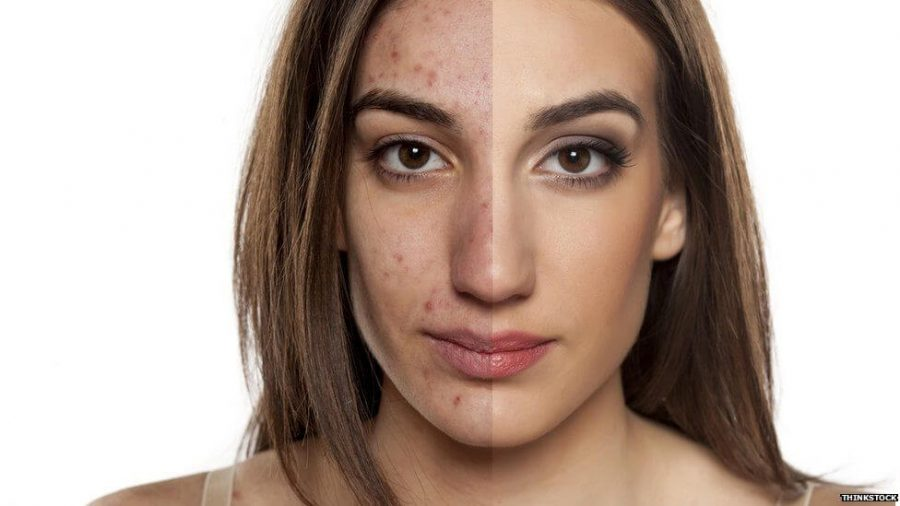 before and after with acne