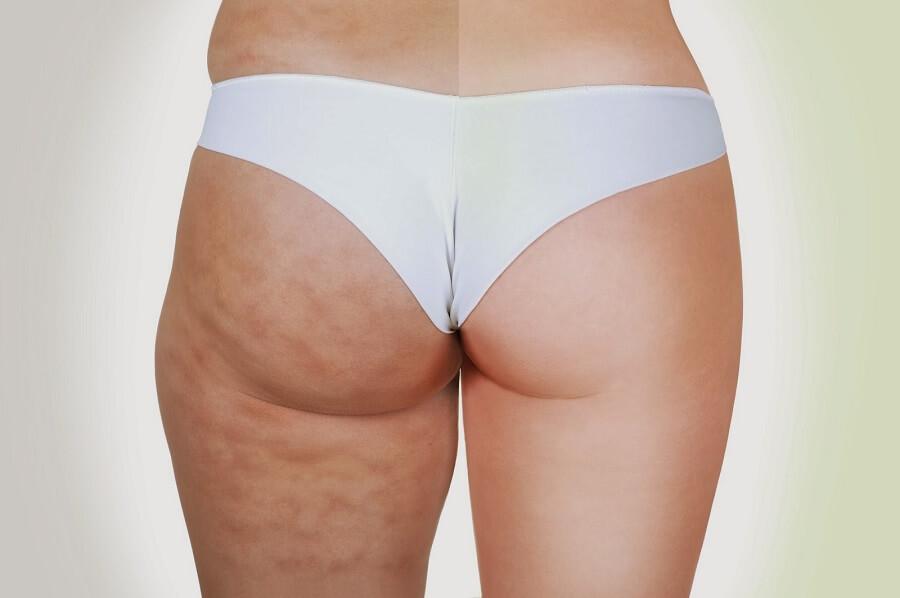 cellulites and no cellulites