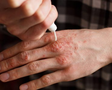 Psoriasis Revolution Review: What's the best way to treat psoriasis?