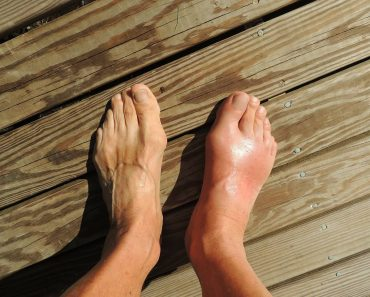Gout And You Review: The Gout Cure You've Been Looking For?