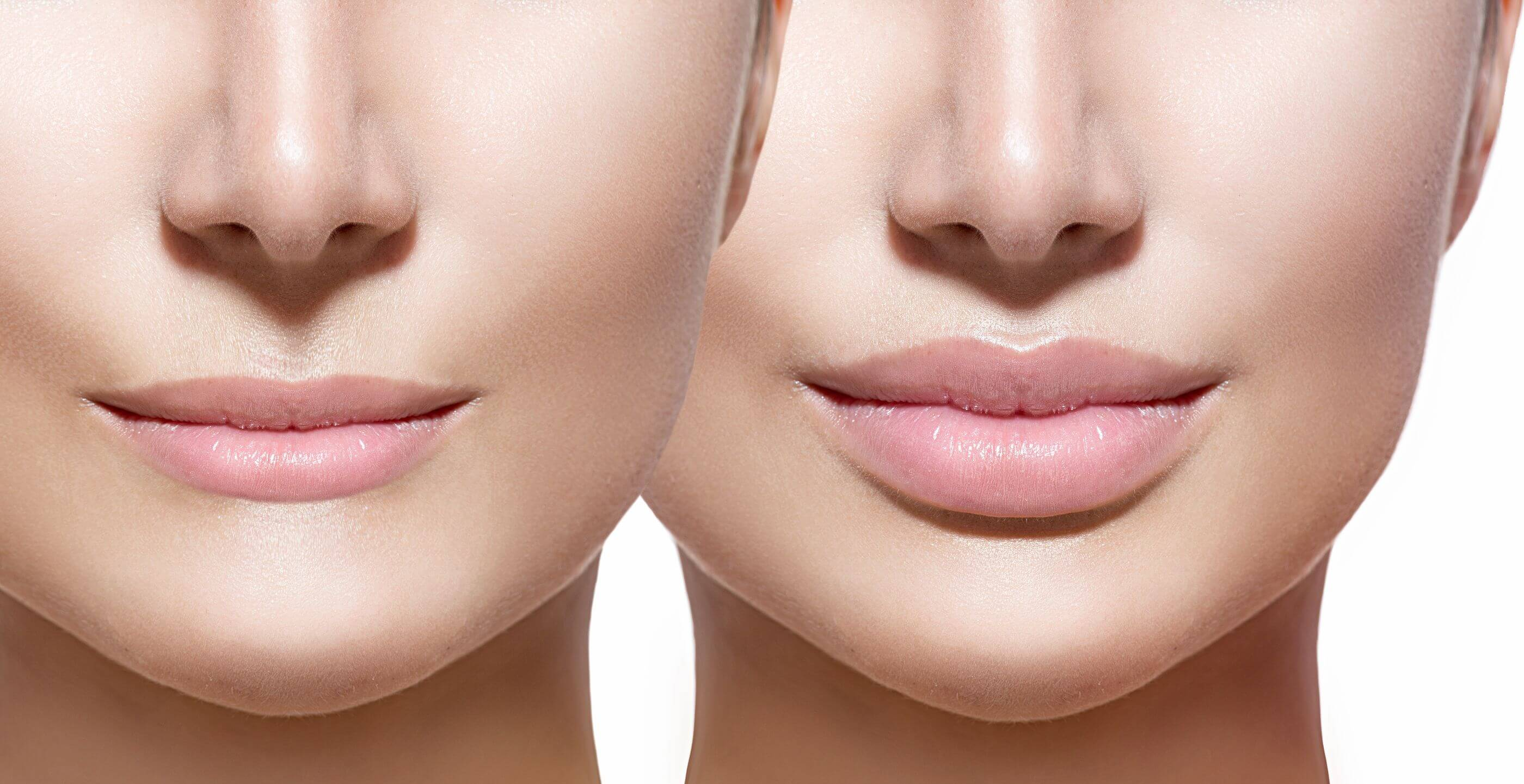 how-to-get-fuller-lips