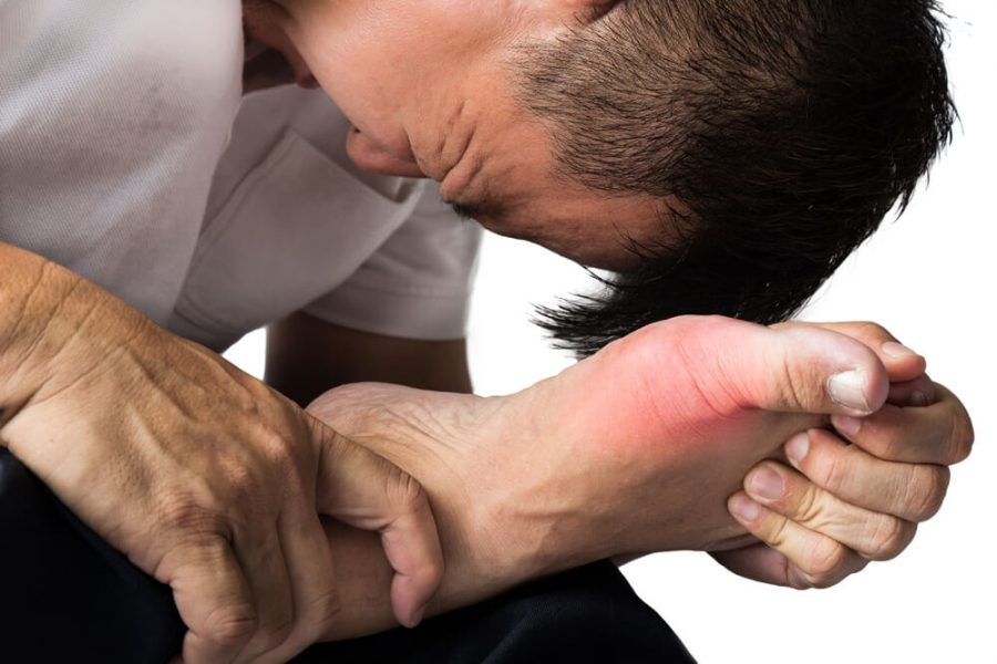 painful and inflamed gout