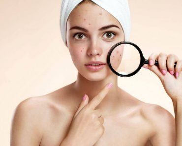 Acne No More Review: How Clear Will Your Skin Look Without Any Acne?