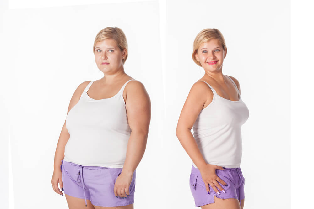 before and after weight loss.