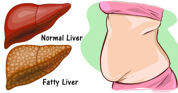 Fat accumulated liver becomes something like this!
